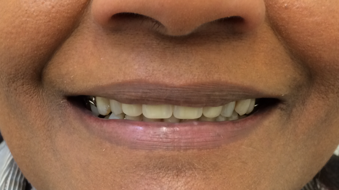 Gallery Before and after - DAVID HILTON DENTURE CLINIC ASCOT VALE